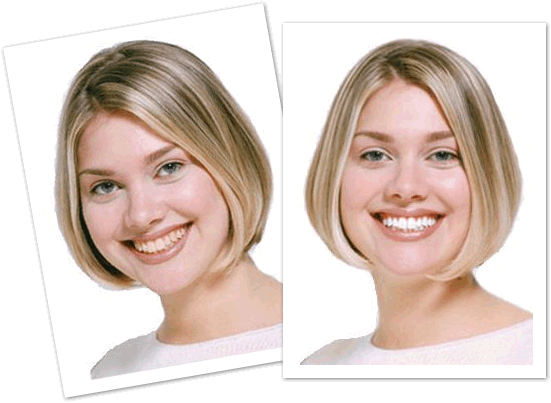 Before & After Teeth Whitening - competition time