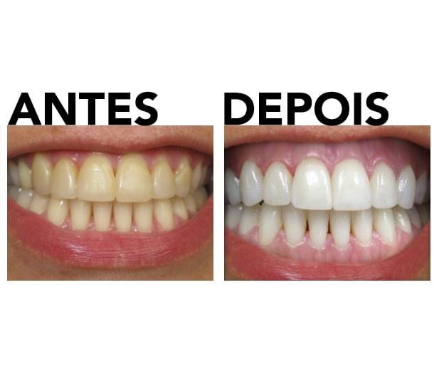 Kit de clareamento dos dentes antes e depois da foto de revisão