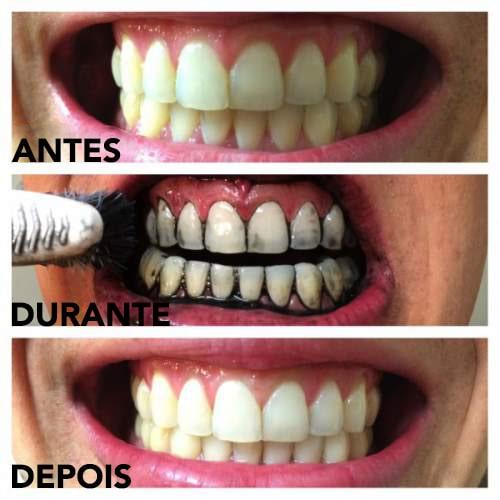 Branqueie os dentes com carvão ativado antes e depois