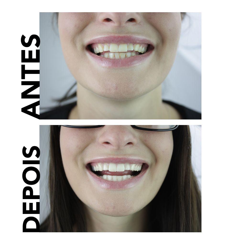 dentes naturais branqueamento creme dental antes e depois